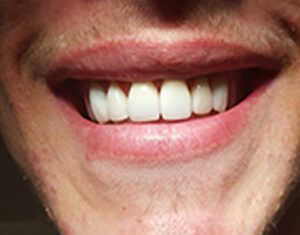 after dental crowns to correct spaces