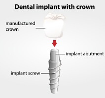 crown implant example