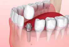 Model showing the benefits of dental implants in West Palm Beach.