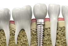 Dental implant inserted into a jawbone.
