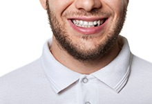 Man in a white shirt who is missing a tooth.