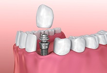 Model showing parts of a dental implant.