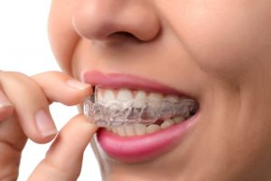 woman inserting Invisalign aligner in mouth