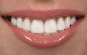 woman smiling with beautiful teeth