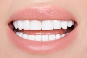person with porcelain veneers smiling
